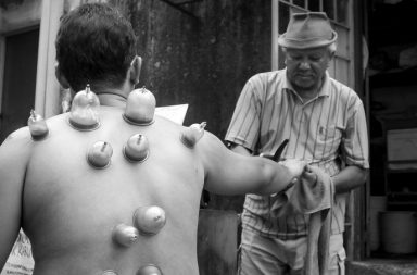 cupping-therapie